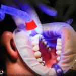 Zła metoda żywienia się to większe ubytki w zębach a również ich utratę
