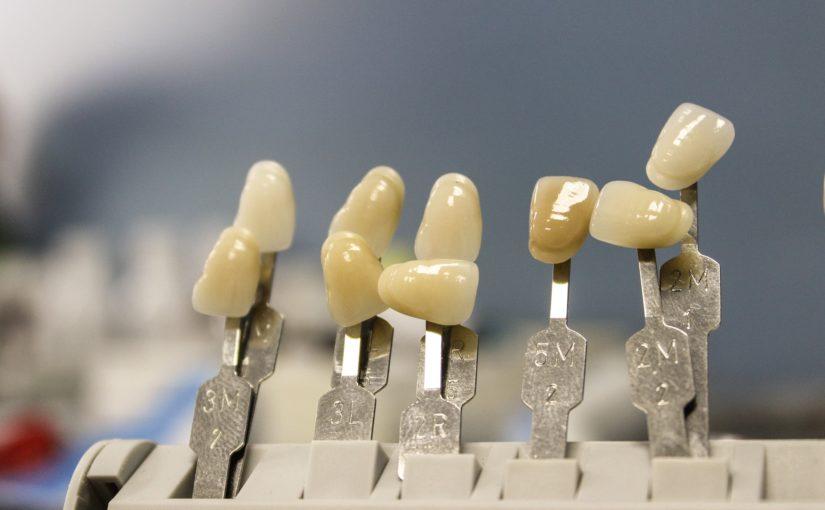 Piękne nienaganne zęby także świetny uroczy uśmiech to powód do płenego uśmiechu.